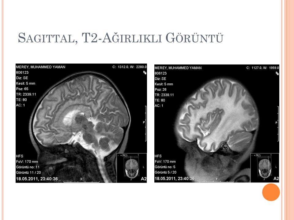 Sagittal, T2-Ağirlikli Görüntü