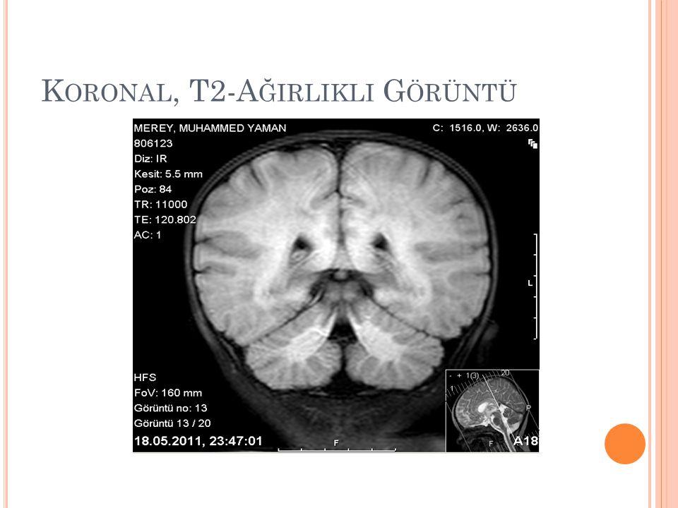 Koronal, T2-Ağirlikli Görüntü