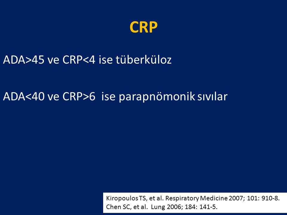 CRP ADA>45 ve CRP<4 ise tüberküloz ADA<40 ve CRP>6 ise parapnömonik sıvılar Kiropoulos TS, et al. Respiratory Medicine 2007; 101: 910-8.
