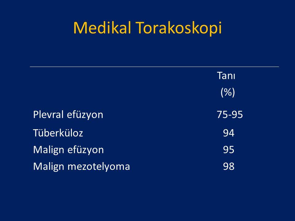 Medikal Torakoskopi Tanı (%) Plevral efüzyon 75-95 Tüberküloz 94
