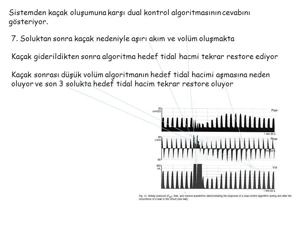 Sistemden kaçak oluşumuna karşı dual kontrol algoritmasının cevabını gösteriyor.