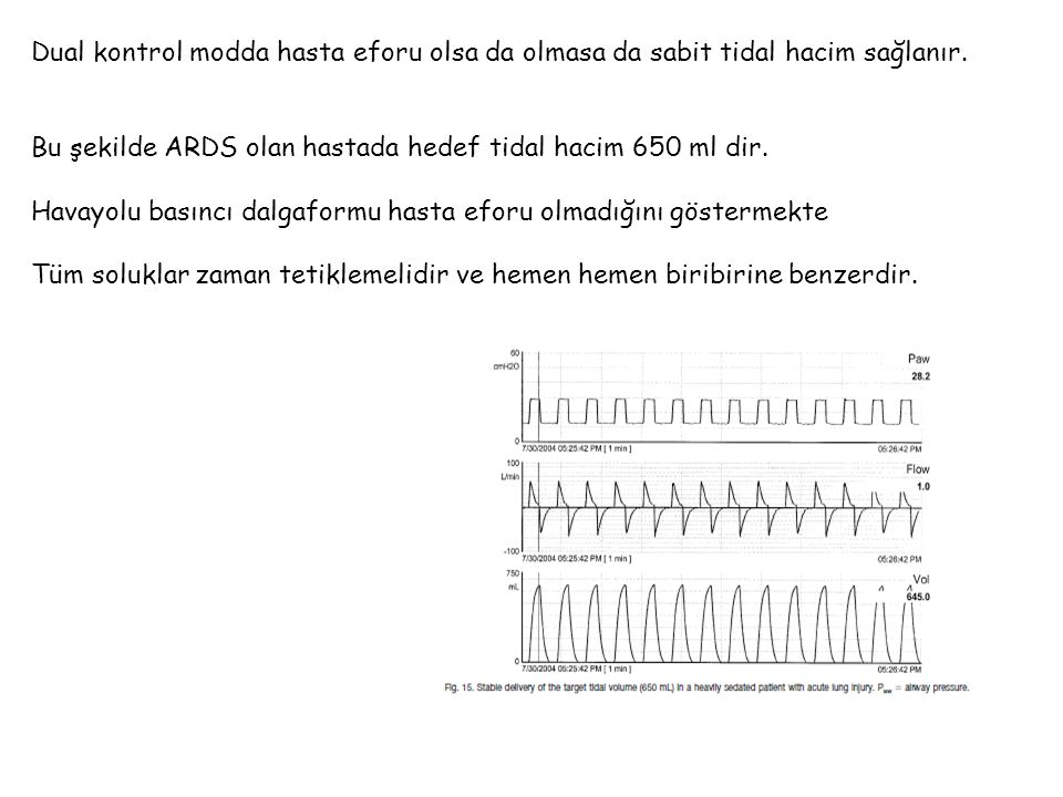 Dual kontrol modda hasta eforu olsa da olmasa da sabit tidal hacim sağlanır.