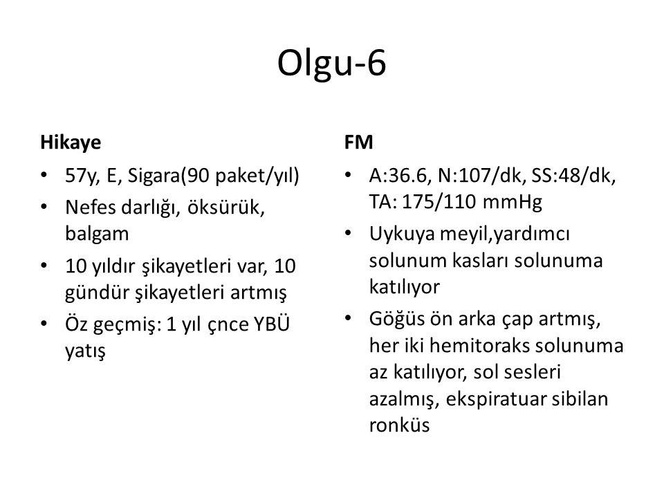 Olgu-6 Hikaye FM 57y, E, Sigara(90 paket/yıl)