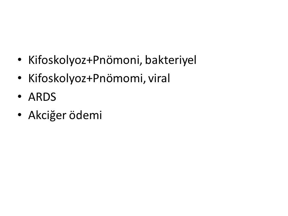 Kifoskolyoz+Pnömoni, bakteriyel