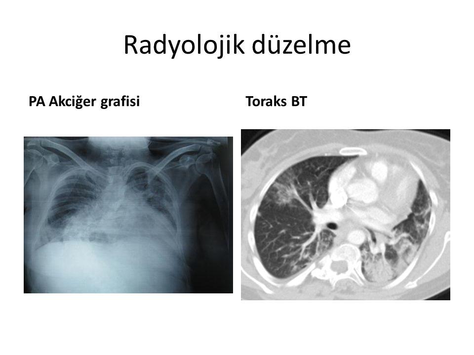 Radyolojik düzelme PA Akciğer grafisi Toraks BT
