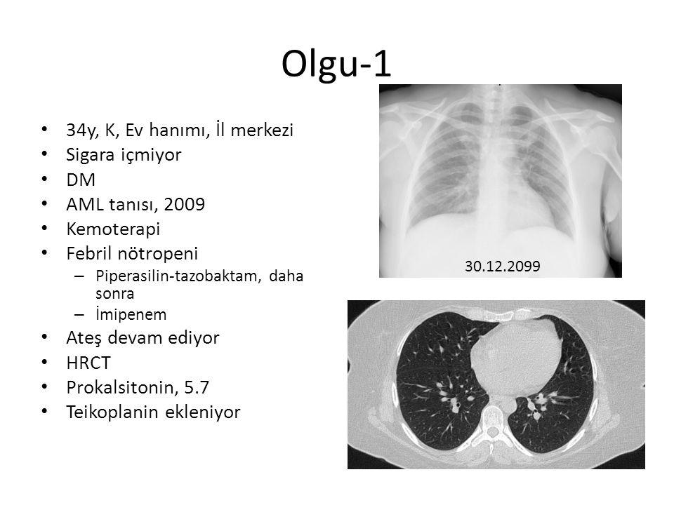 Olgu-1 34y, K, Ev hanımı, İl merkezi Sigara içmiyor DM