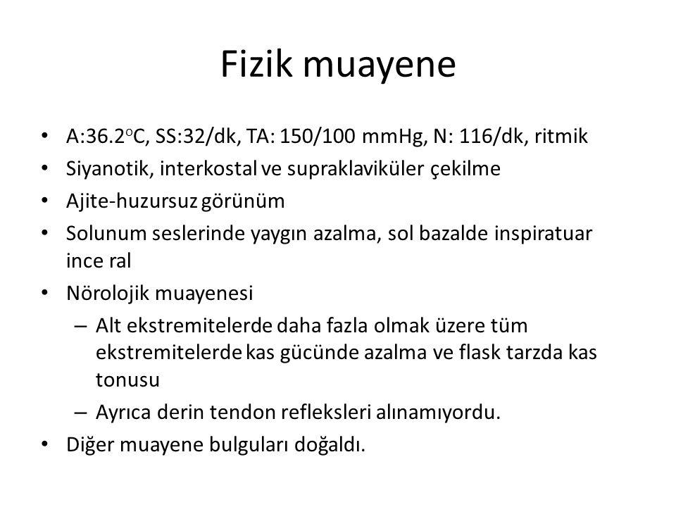 Fizik muayene A:36.2oC, SS:32/dk, TA: 150/100 mmHg, N: 116/dk, ritmik