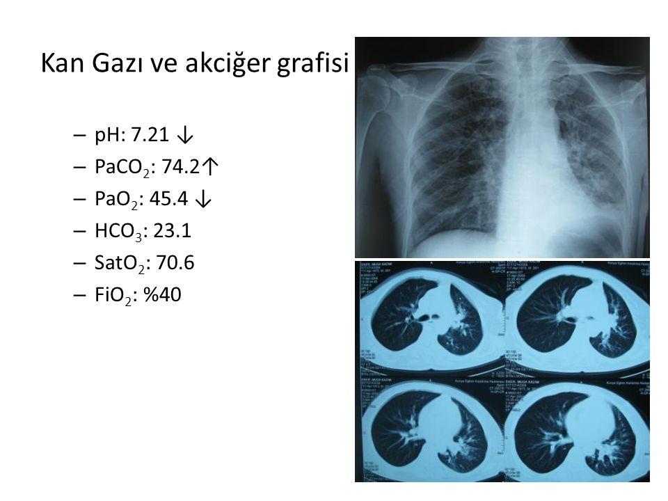 Kan Gazı ve akciğer grafisi