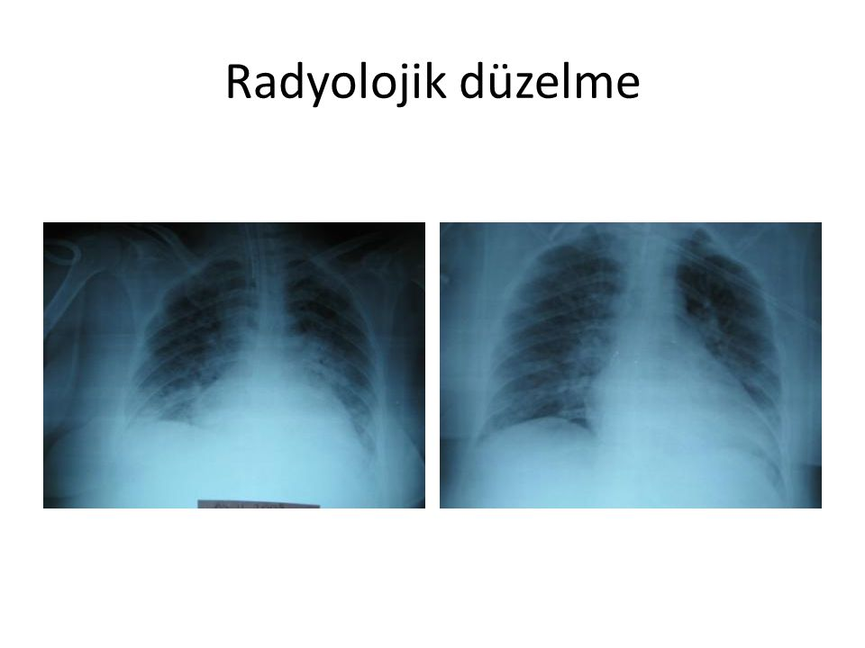 Radyolojik düzelme