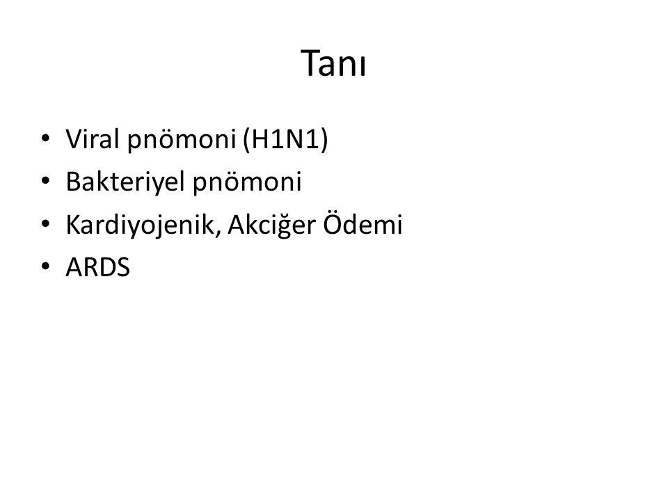 Tanı Viral pnömoni (H1N1) Bakteriyel pnömoni