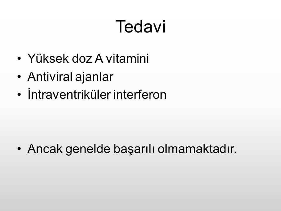 Tedavi Yüksek doz A vitamini Antiviral ajanlar