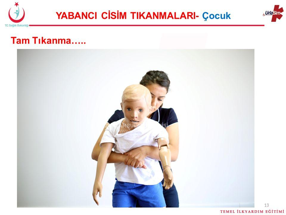 YABANCI CİSİM TIKANMALARI- Çocuk