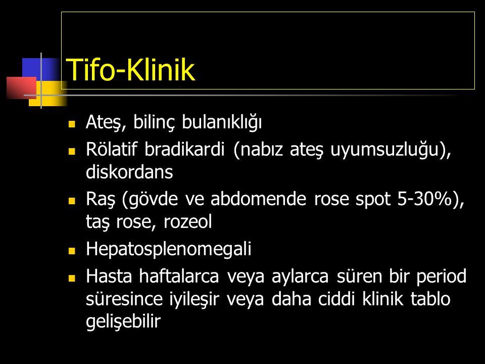 Tifo-Klinik Ateş, bilinç bulanıklığı