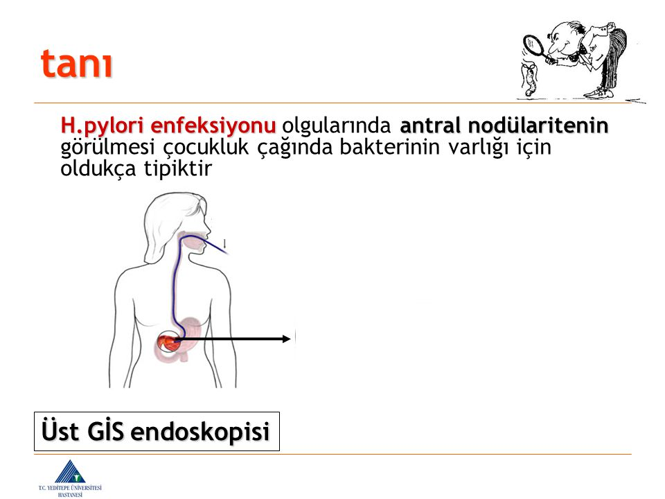 tanı Üst GİS endoskopisi