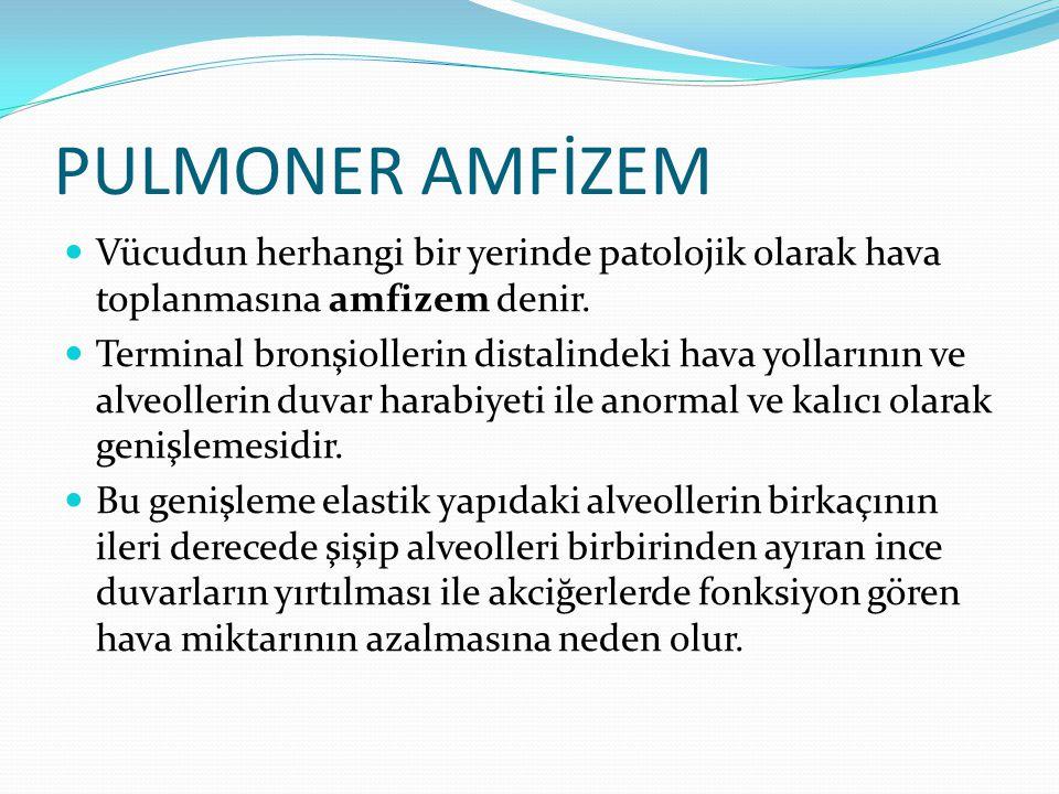 PULMONER AMFİZEM Vücudun herhangi bir yerinde patolojik olarak hava toplanmasına amfizem denir.