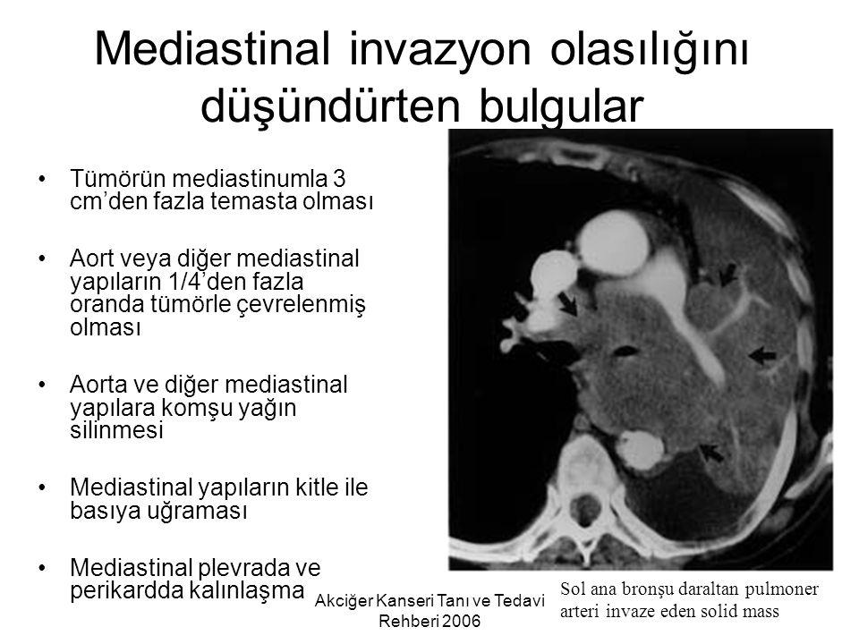 Mediastinal invazyon olasılığını düşündürten bulgular