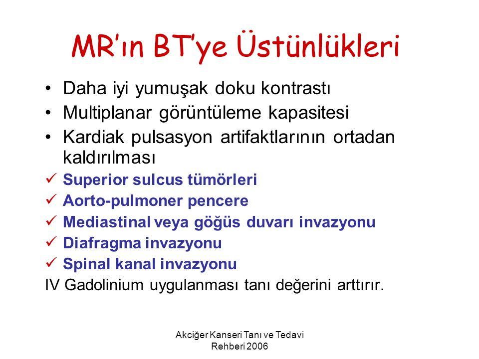 MR'ın BT'ye Üstünlükleri