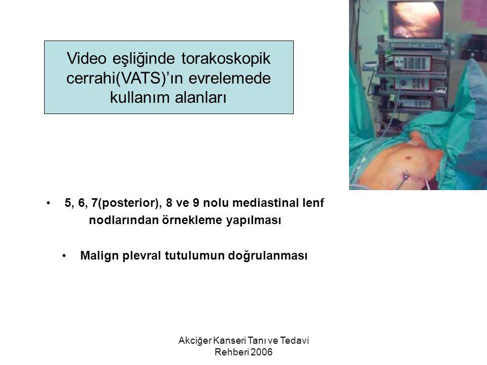 Toraks Derneği Video eşliğinde torakoskopik cerrahi(VATS)'ın evrelemede kullanım alanları. 5, 6, 7(posterior), 8 ve 9 nolu mediastinal lenf.