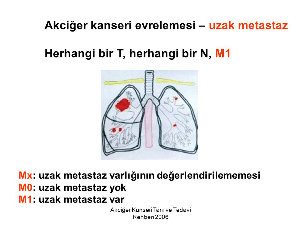 Akciğer Kanseri Tanı ve Tedavi Rehberi 2006