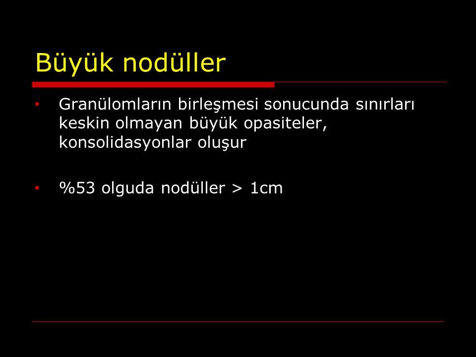 Büyük nodüller Granülomların birleşmesi sonucunda sınırları keskin olmayan büyük opasiteler, konsolidasyonlar oluşur.