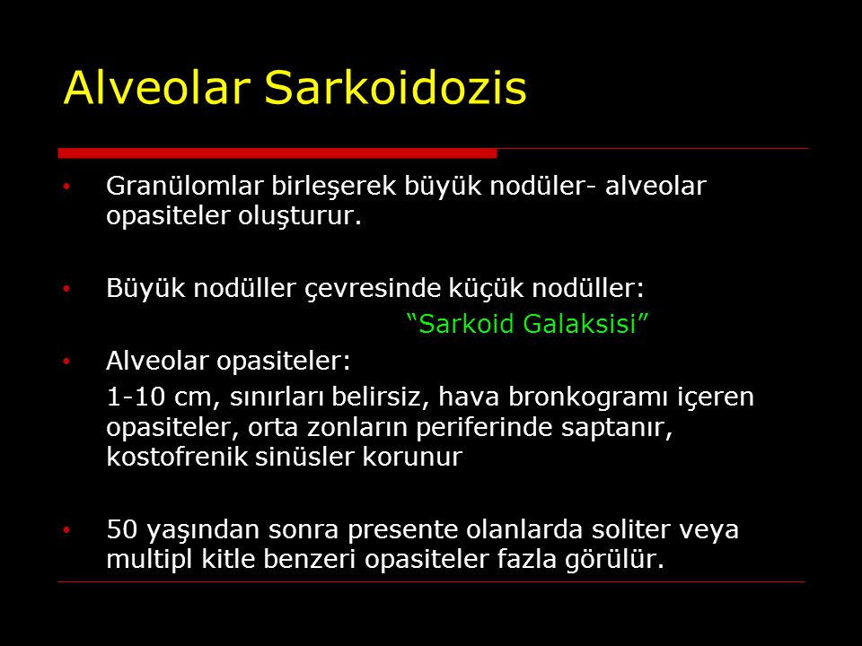 Alveolar Sarkoidozis Granülomlar birleşerek büyük nodüler- alveolar opasiteler oluşturur. Büyük nodüller çevresinde küçük nodüller: