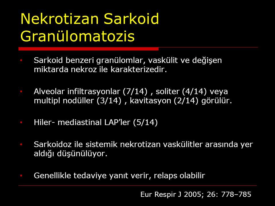 Nekrotizan Sarkoid Granülomatozis
