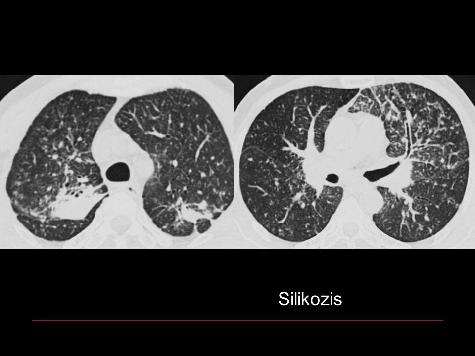 Silikozis