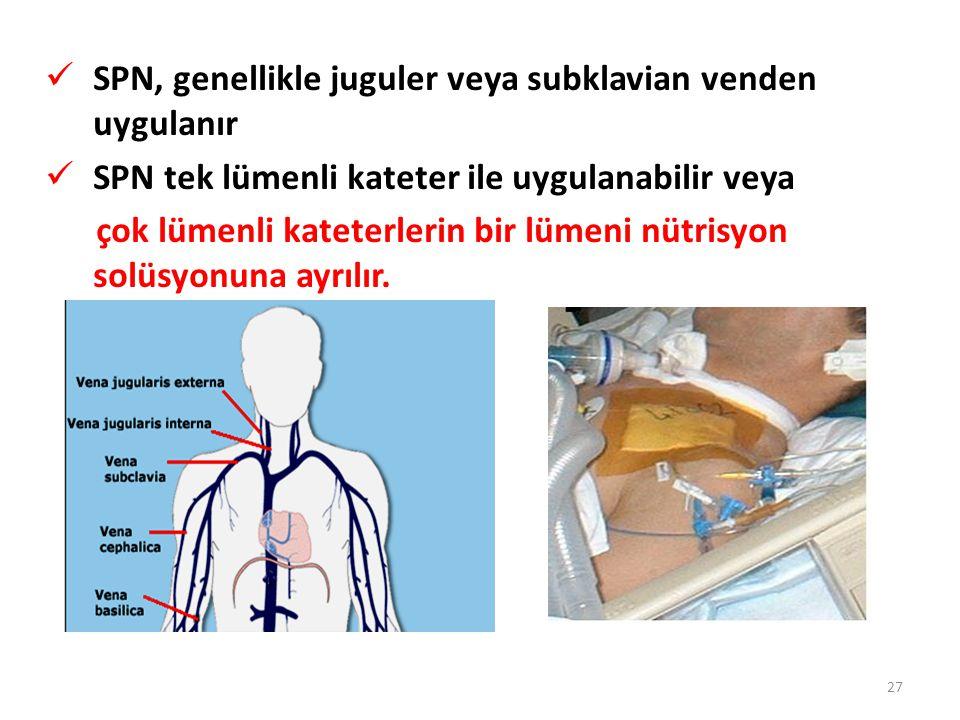 SPN, genellikle juguler veya subklavian venden uygulanır