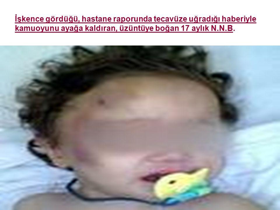 İşkence gördüğü, hastane raporunda tecavüze uğradığı haberiyle kamuoyunu ayağa kaldıran, üzüntüye boğan 17 aylık N.N.B.