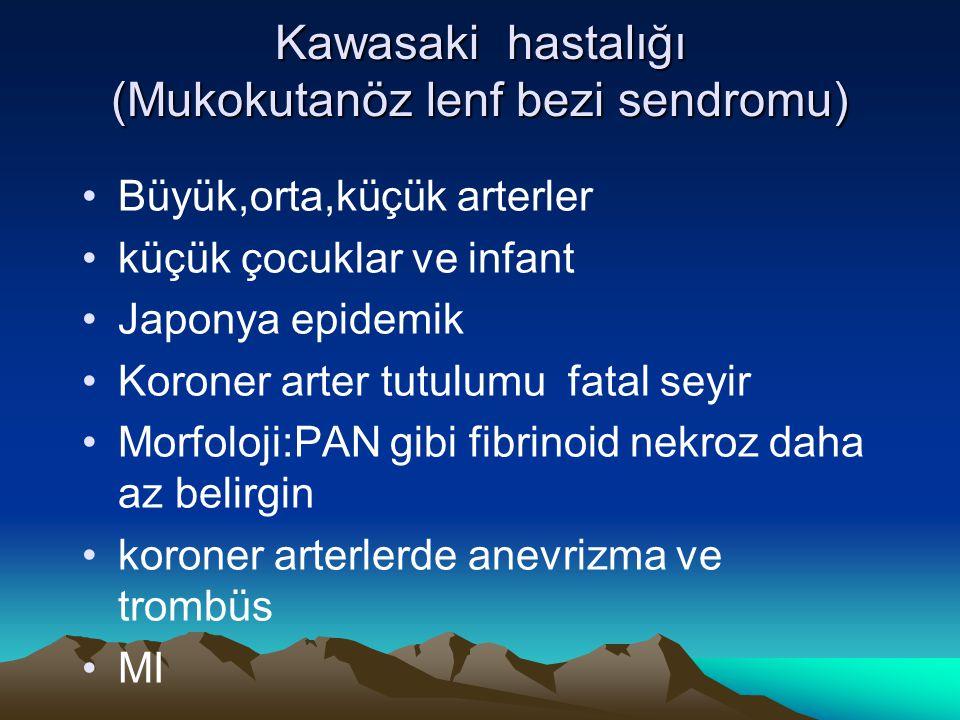 Kawasaki hastalığı (Mukokutanöz lenf bezi sendromu)
