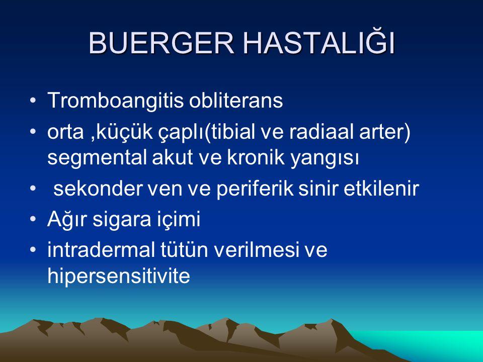 BUERGER HASTALIĞI Tromboangitis obliterans