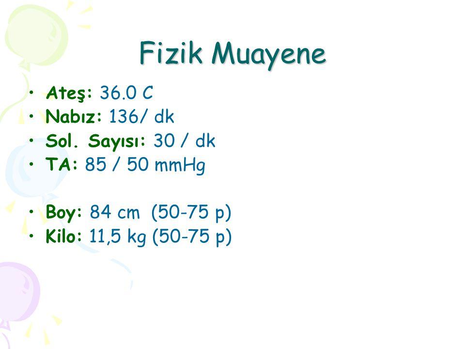 Fizik Muayene Ateş: 36.0 C Nabız: 136/ dk Sol. Sayısı: 30 / dk