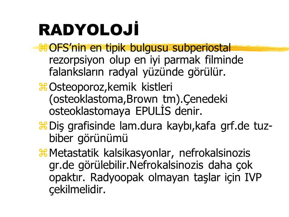 RADYOLOJİ OFS'nin en tipik bulgusu subperiostal rezorpsiyon olup en iyi parmak filminde falanksların radyal yüzünde görülür.