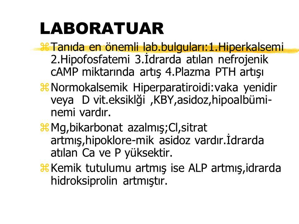 LABORATUAR Tanıda en önemli lab.bulguları:1.Hiperkalsemi 2.Hipofosfatemi 3.İdrarda atılan nefrojenik cAMP miktarında artış 4.Plazma PTH artışı.