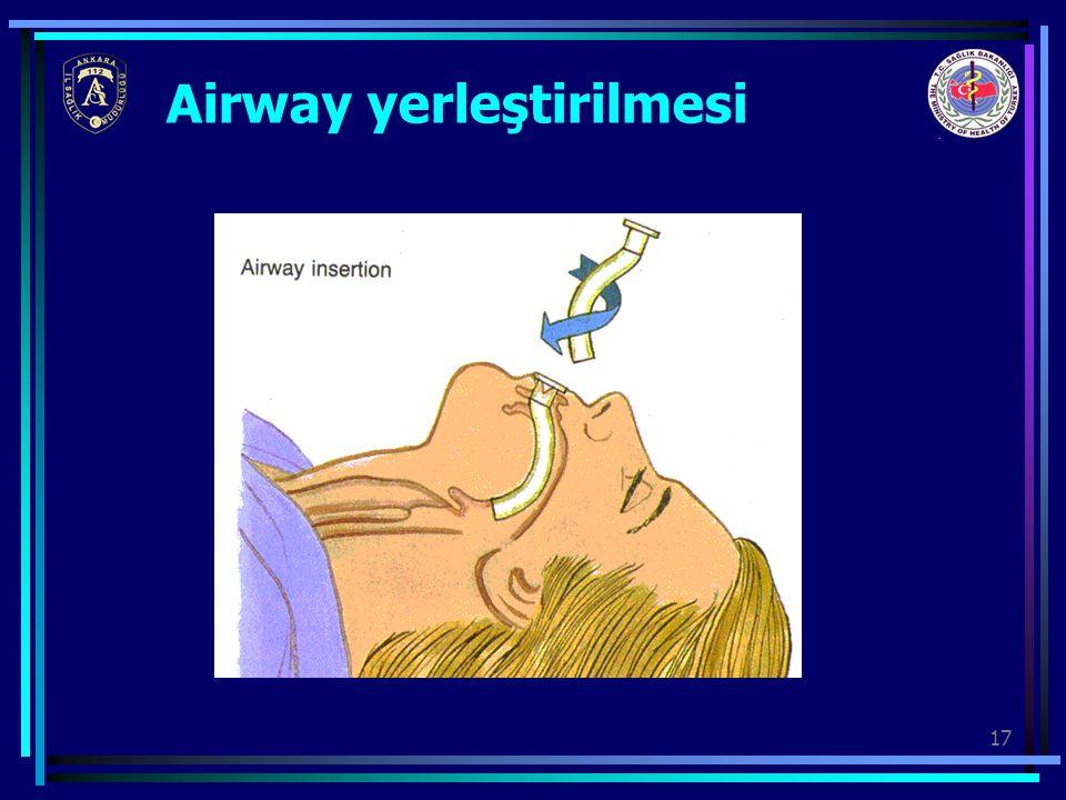 Airway yerleştirilmesi