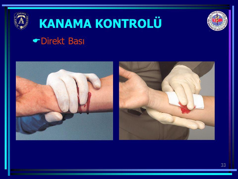KANAMA KONTROLÜ Direkt Bası
