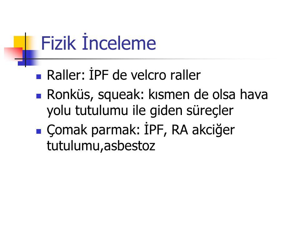Fizik İnceleme Raller: İPF de velcro raller