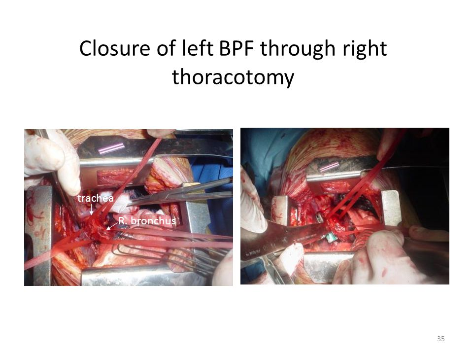 Closure of left BPF through right thoracotomy