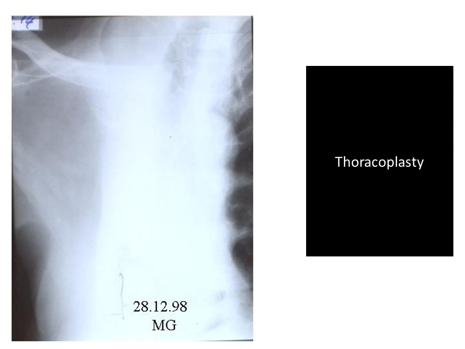 Thoracoplasty