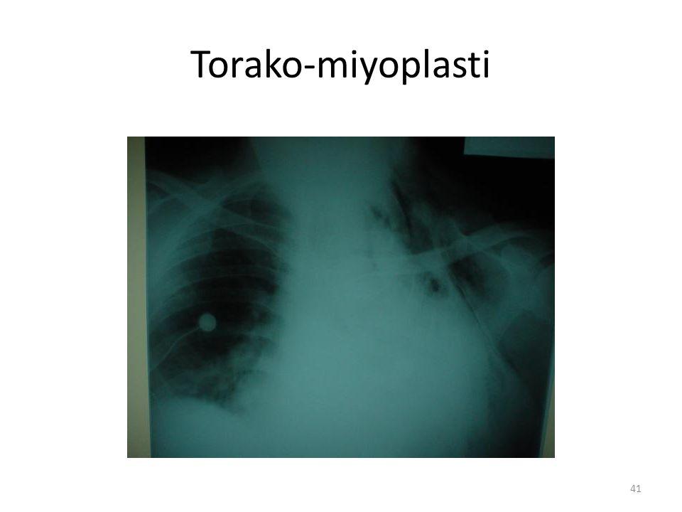 Torako-miyoplasti