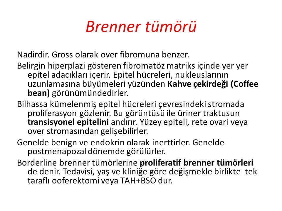Brenner tümörü