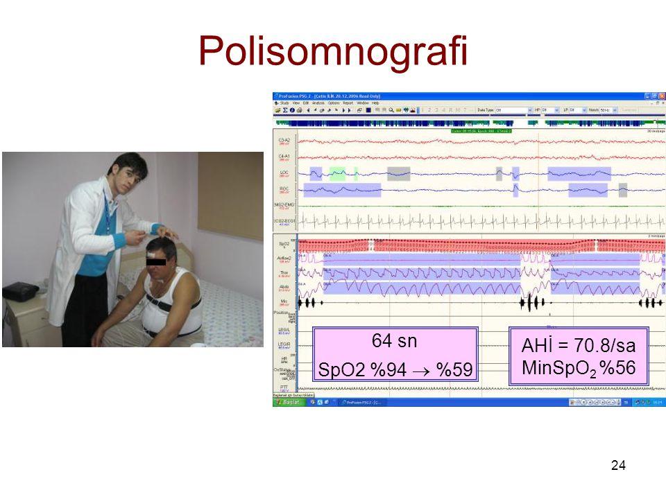 Polisomnografi 64 sn SpO2 %94  %59 AHİ = 70.8/sa MinSpO2 %56