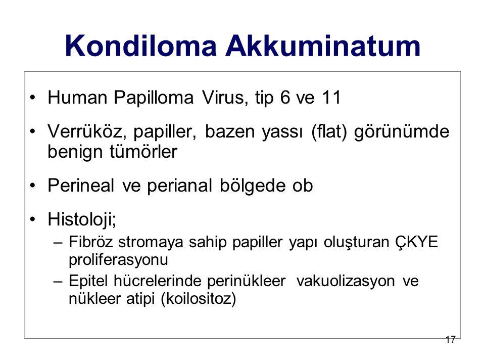 Kondiloma Akkuminatum