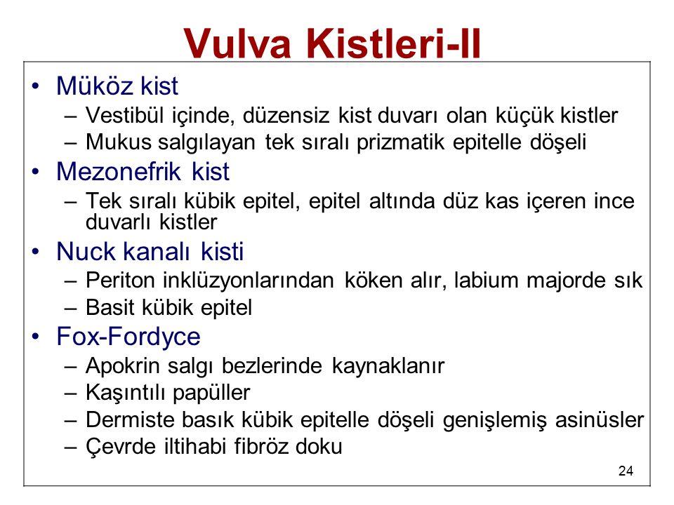Vulva Kistleri-II Müköz kist Mezonefrik kist Nuck kanalı kisti