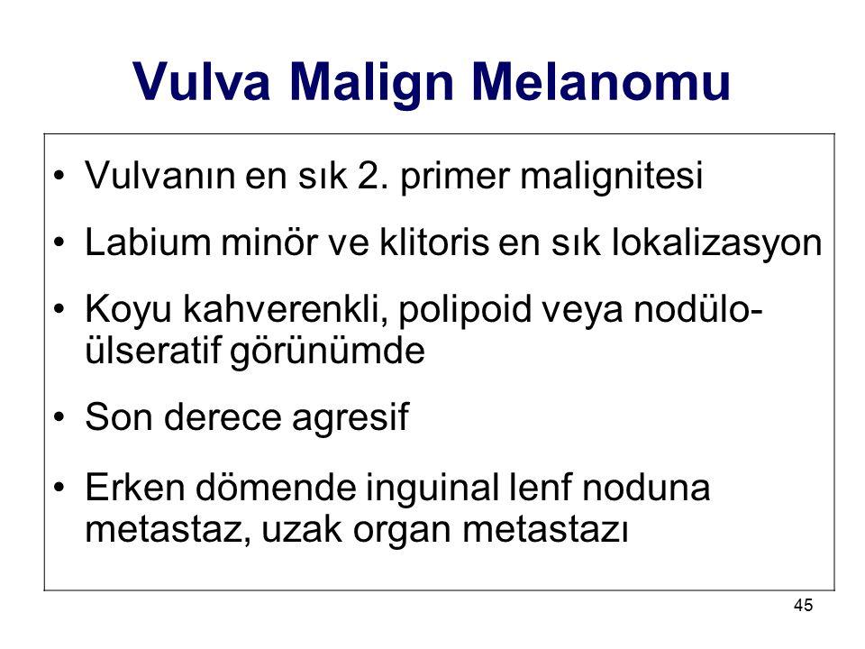 Vulva Malign Melanomu Vulvanın en sık 2. primer malignitesi