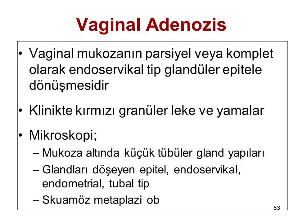 Vaginal Adenozis Vaginal mukozanın parsiyel veya komplet olarak endoservikal tip glandüler epitele dönüşmesidir.
