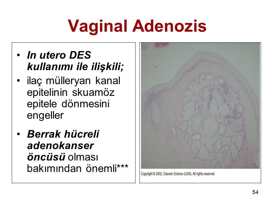Vaginal Adenozis In utero DES kullanımı ile ilişkili;