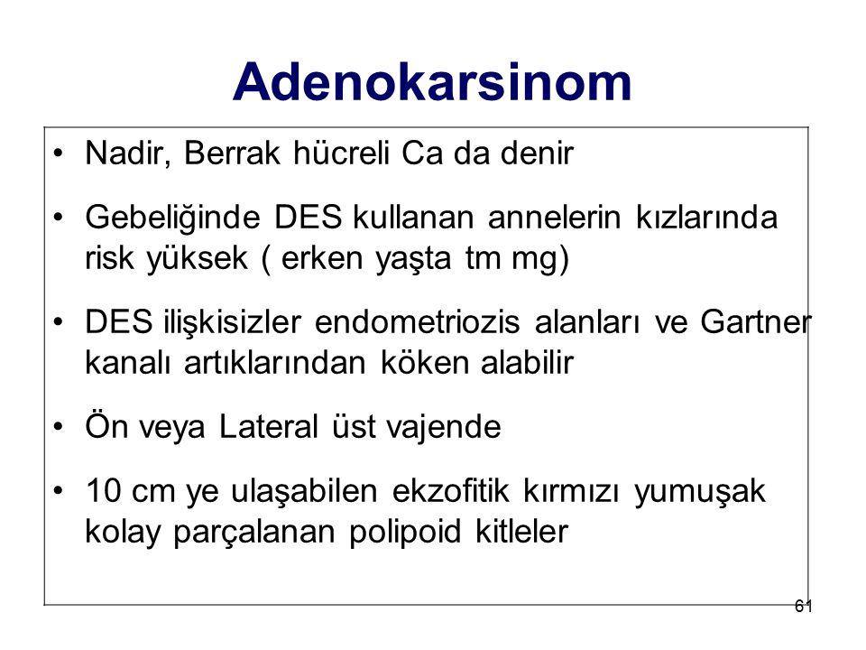 Adenokarsinom Nadir, Berrak hücreli Ca da denir