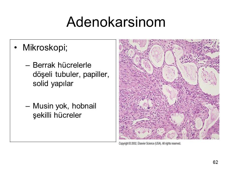 Adenokarsinom Mikroskopi;