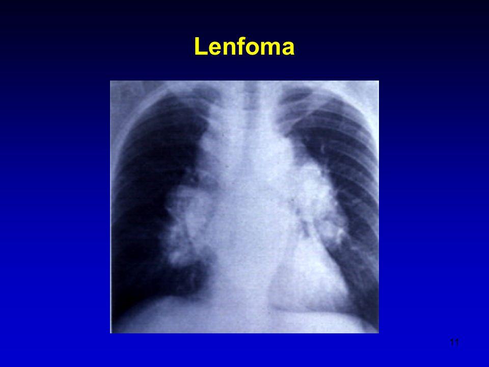 Lenfoma